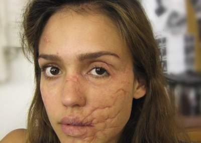 7007313a9be63 Revelan impactantes imágenes de Jessica Alba con el rostro desfigurado   FOTOS
